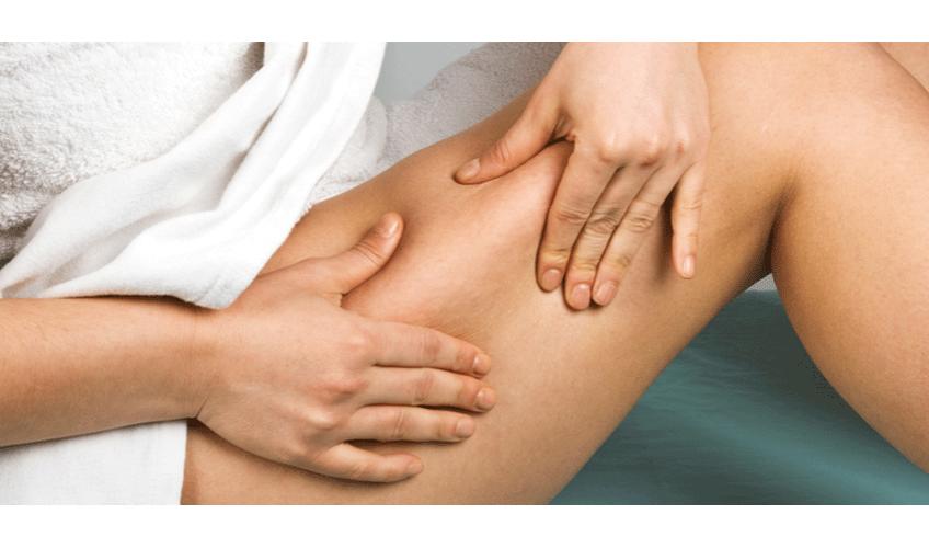 Celulitidu ovlivní vaše strava i lenost. Jak s ní bojovat?